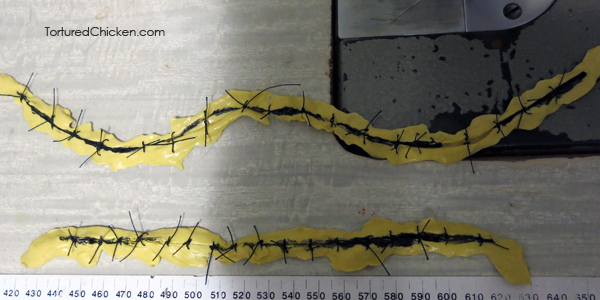 sutures prosthetic
